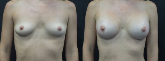Case #129 Breast augmentation with 285cc Sientra implants.