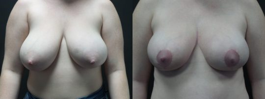 Case#164 Breast Reduction