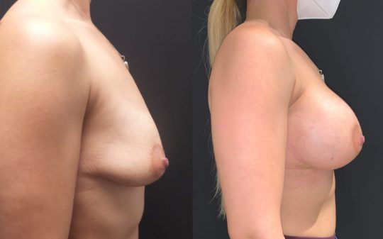 Case#172 Breast Augmentation with 375cc Implants