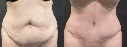 Case#1913 Tummy Tuck with liposuction to abdomen and flanks