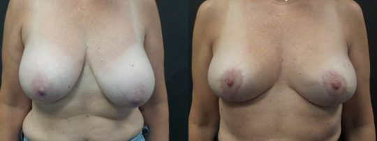 Case #181 Breast Reduction
