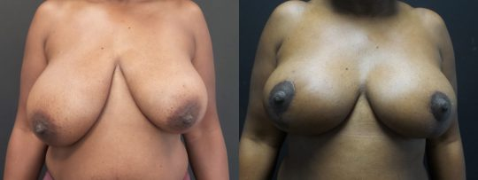 Case #180 Breast Reduction