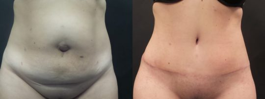 Case #90 Tummy Tuck before and after.
