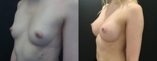 Case #141 6 months post breast augmentation with Mentor 425HP silicone (submuscular)