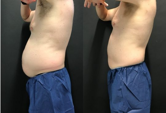 CoolSculpting to Abdomen and Flanks 6 weeks post