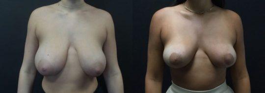 18 yo F 1 month post breast reduction