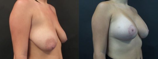 20 yo F 3 months post breast lift with aug, sientra 385MP R, 415MPL submuscular