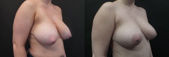 24 yo F 3 months post breast reduction