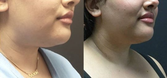 25 yo F 3 mos post local submental lipo with facetite and morpheus