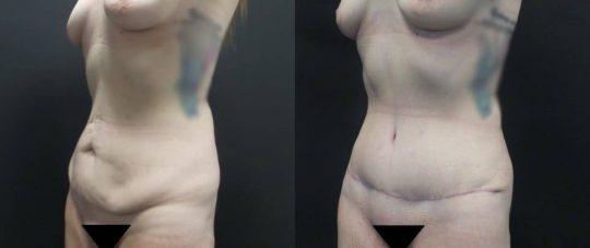 28 yo F 3 months post abdominoplasty