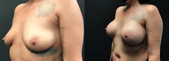 3 months post breast augmentation with Sientra silicone implants_ L 505HP R 565HP (submuscular)