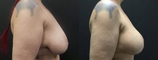 42 yo F 5 months post breast lift with aug sientra 385 MP submuscular