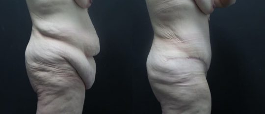 43 yo F 1 month post abdominoplasty