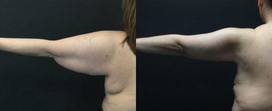 45 yo F 1 month post brachioplasty