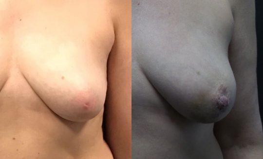 46 yo F 2 wks post inverted nipple repair