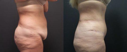 48 yo F 3 months post abdominoplasty
