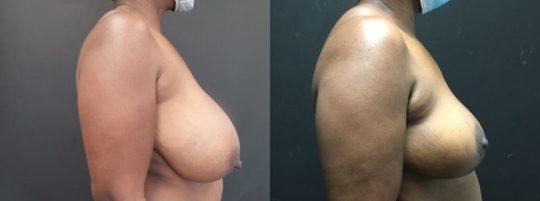 48 yo F 3 months post breast reduction