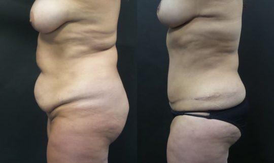 51 yo F 6 months post abdominoplasty