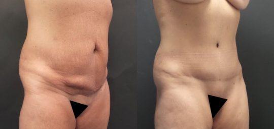51 yo F 9 months post abdominoplasty