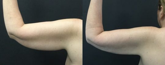 54 yo F 1 month post lipo to arms with bodytite and morpheus