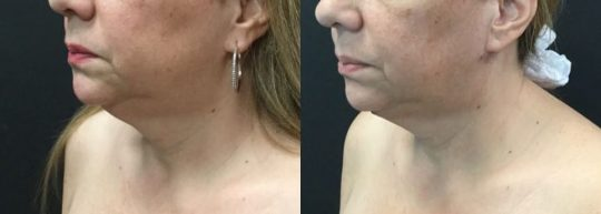 54 yo F 1 month post submental lipo with facetite and morpheus (5)