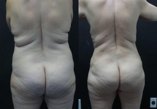 54 yo F 6 months post abdominoplasty