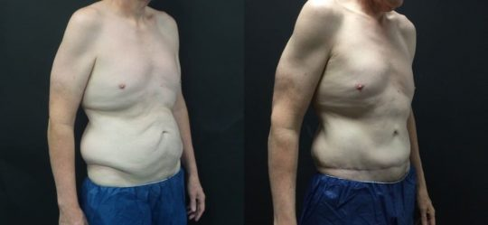 54 yo M 1 year post abdominoplasty