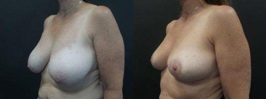 55 yo F 6 months post breast reduction