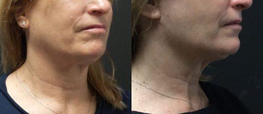 56 yo F 3 months post face&necktite with morpheus