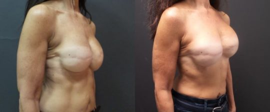 58 YO F 9 months post breast recon (fat graft to breast, imp xch (450 mentor HP), capsulectomy, alloderm