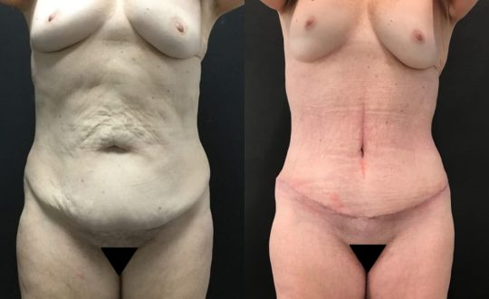 58 yo F 1 month post abdominoplasty