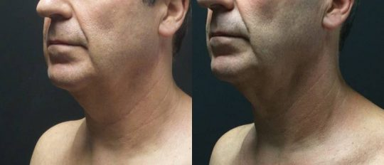 59 yo M 3 months post submental lipo with facetite and morpheus